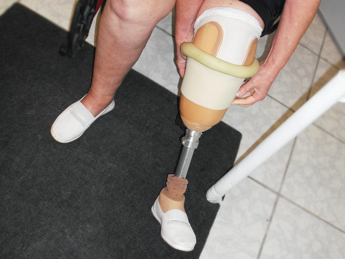Confecção de Próteses em Santos Ortopel Saúde