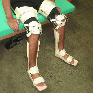 ortopel confecção de órteses