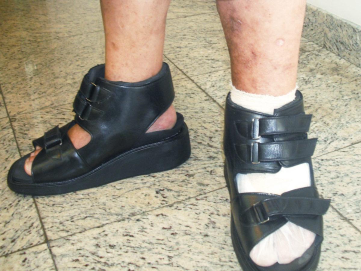 Ortopel Saúde Confecção de Calçados em Santos