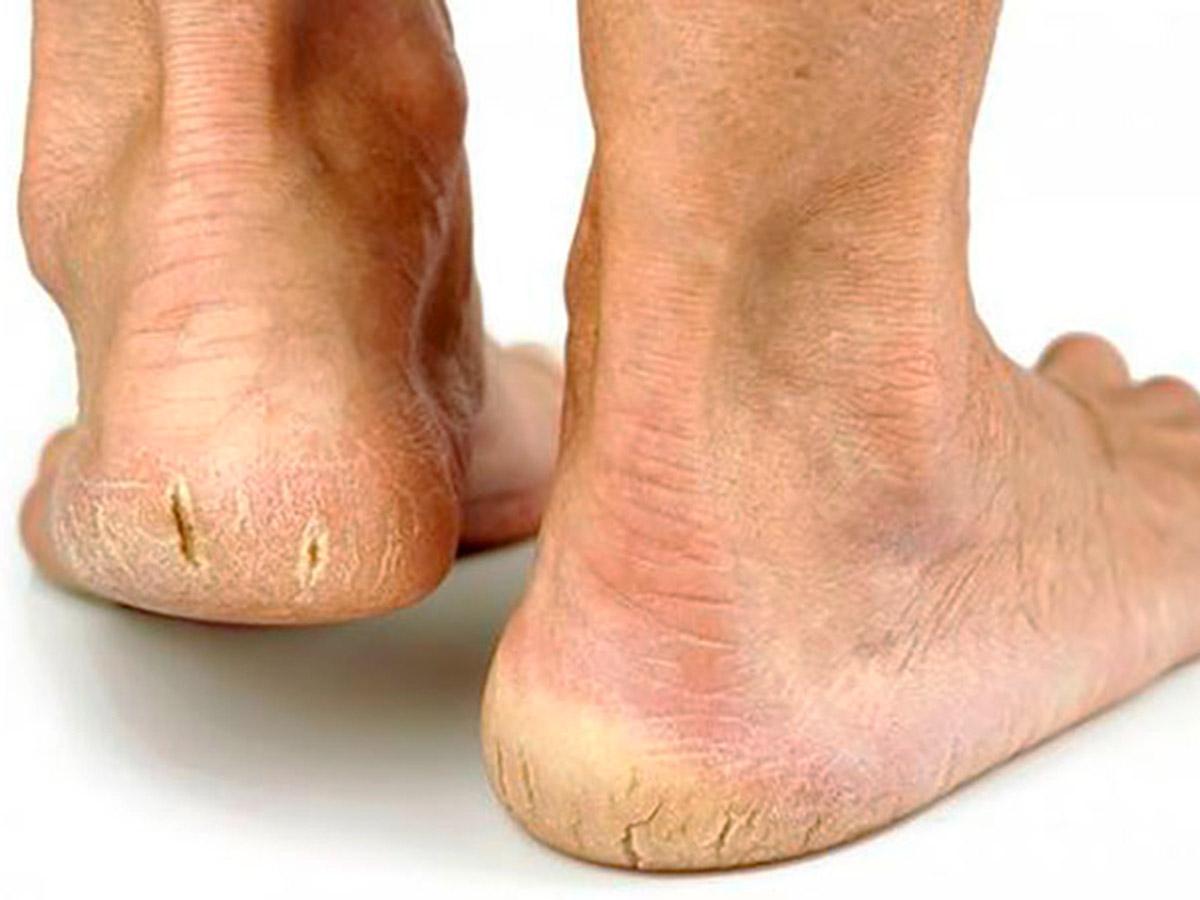 Tratamento para pés com calos e calosidades em Santos