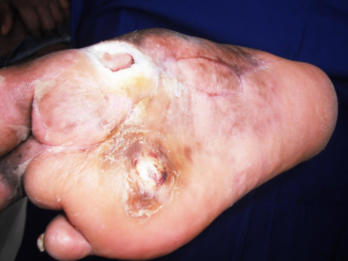Tratamento de pé diabético em Santos Ortopel Saúde