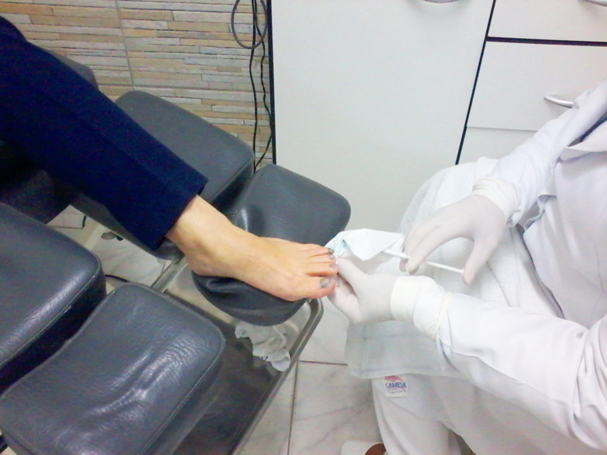 Tratamento de micose nas unhas em Santos - Ortopel Saúde
