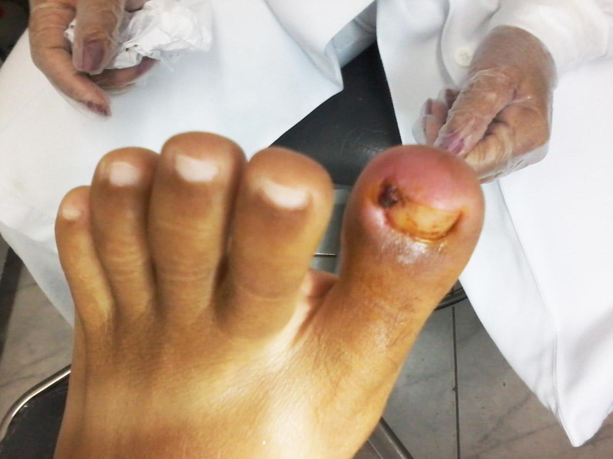 Tratamento de unhas encravadas em Santos - Ortopel Saúde
