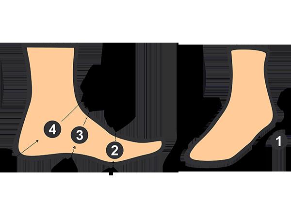Medidas para Confecção de Calçados Ortopédicos